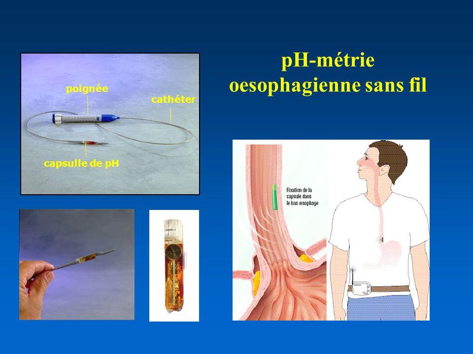 pH-métrie oesophagienne sans fil
