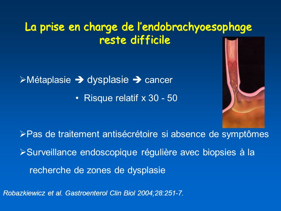La prise en charge de l'endobrachyoesophage reste difficile