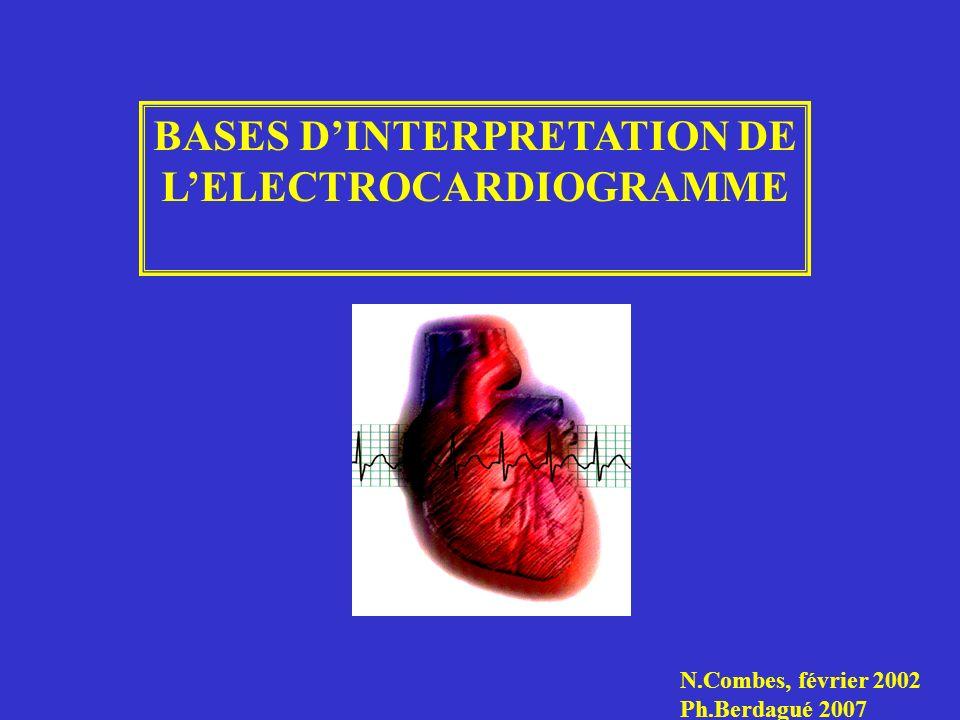 BASES D'INTERPRETATION DE L'ELECTROCARDIOGRAMME