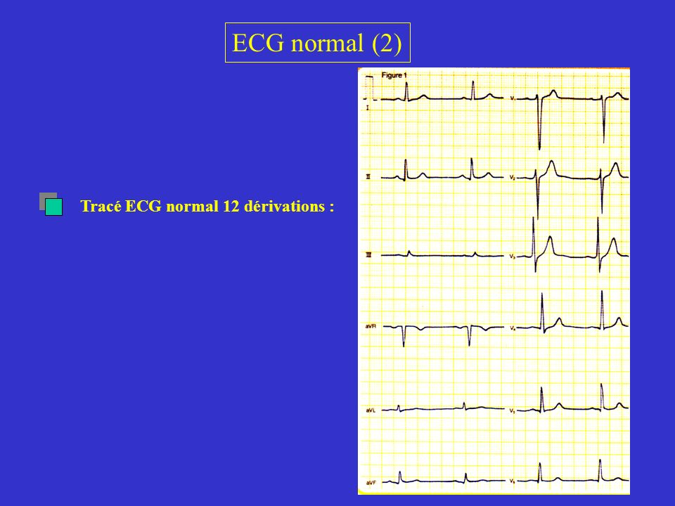 ECG normal (2) Tracé ECG normal 12 dérivations :