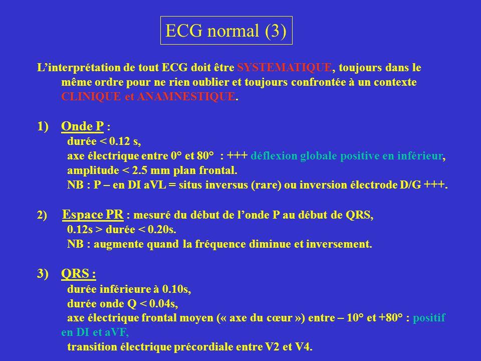 ECG normal (3) Onde P : QRS :