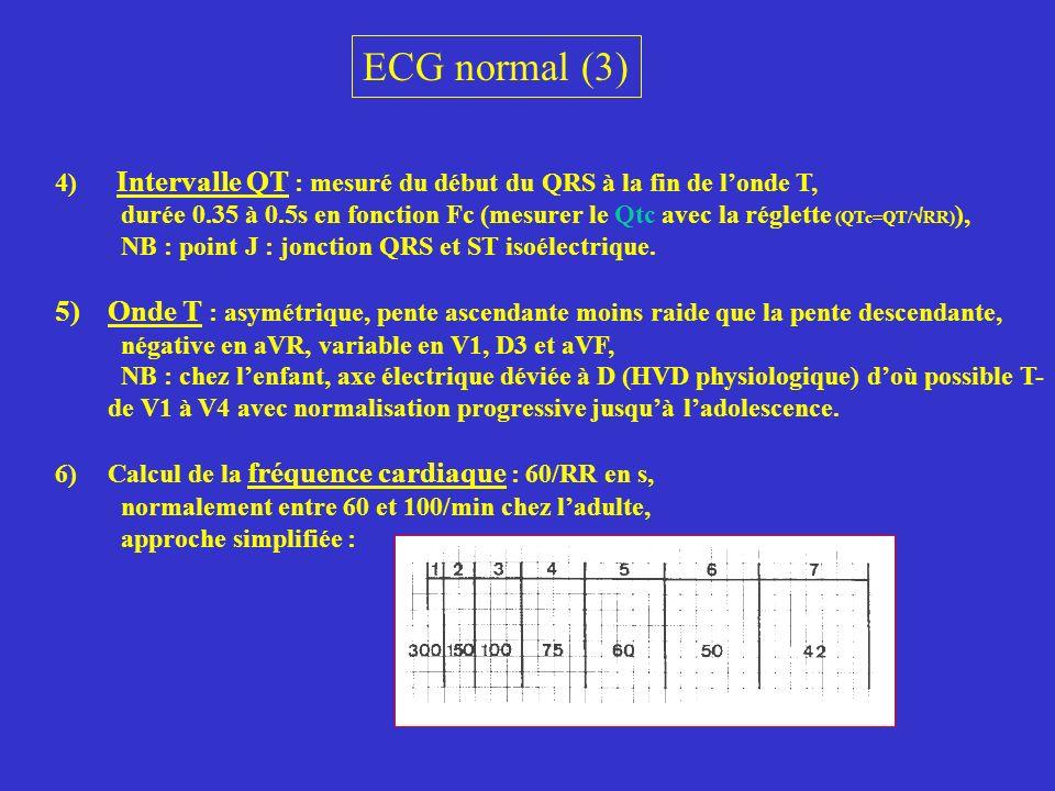 ECG normal (3) 4) Intervalle QT : mesuré du début du QRS à la fin de l'onde T,