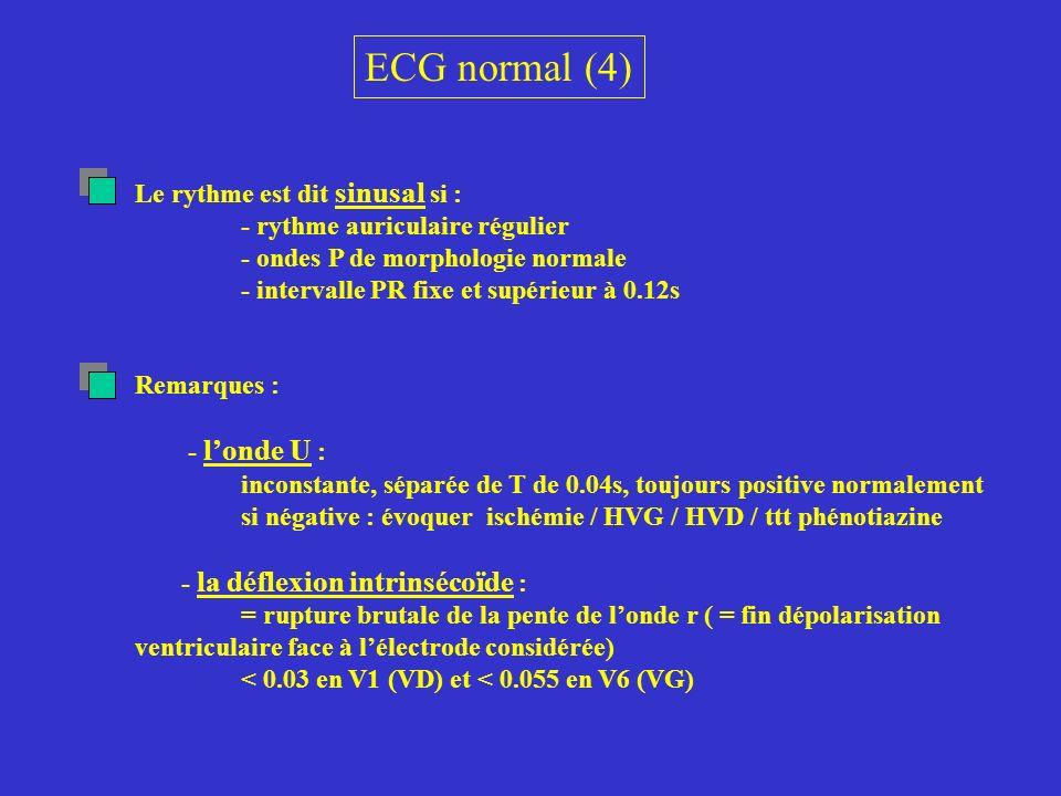 ECG normal (4) Le rythme est dit sinusal si :