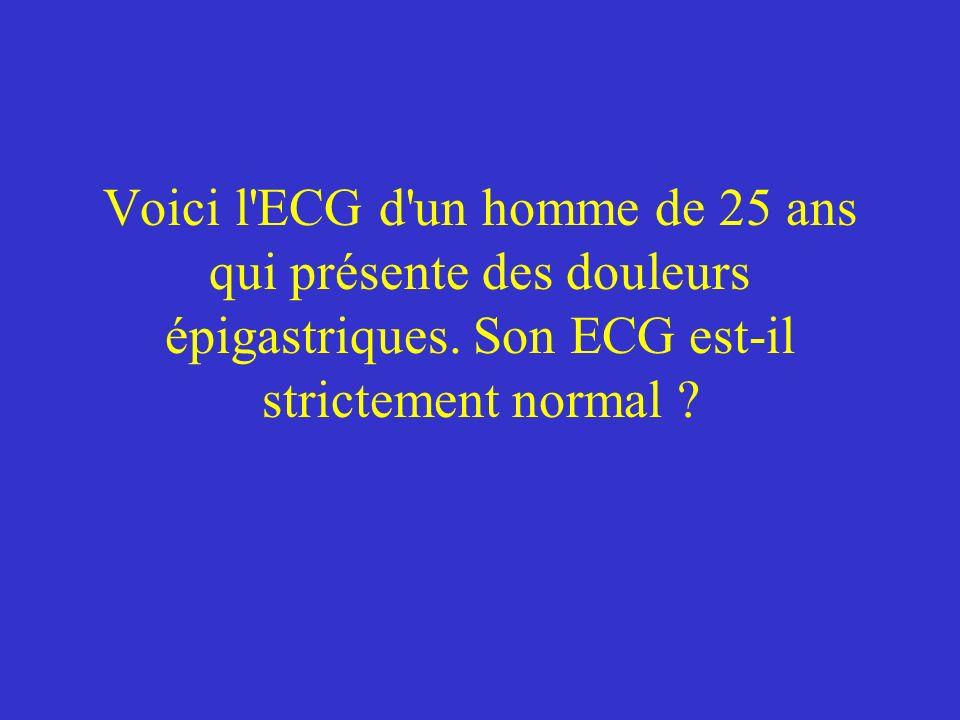 Voici l ECG d un homme de 25 ans qui présente des douleurs épigastriques.