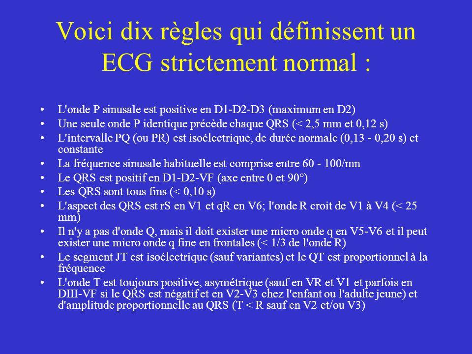 Voici dix règles qui définissent un ECG strictement normal :