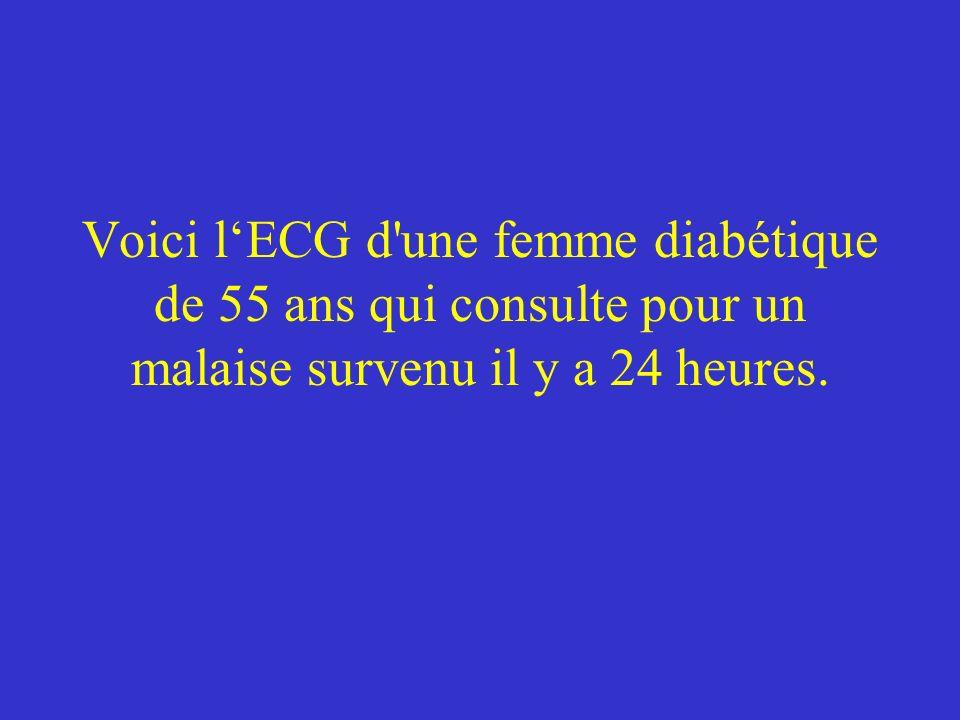 Voici l'ECG d une femme diabétique de 55 ans qui consulte pour un malaise survenu il y a 24 heures.
