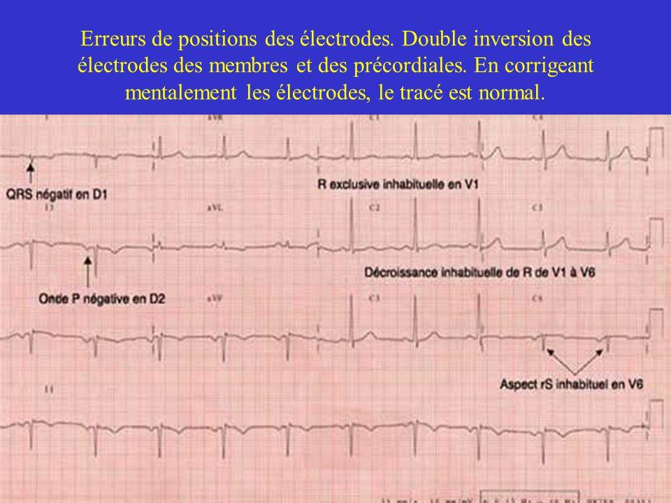 Erreurs de positions des électrodes