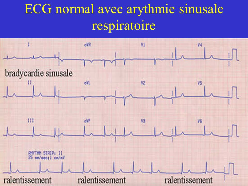 ECG normal avec arythmie sinusale respiratoire