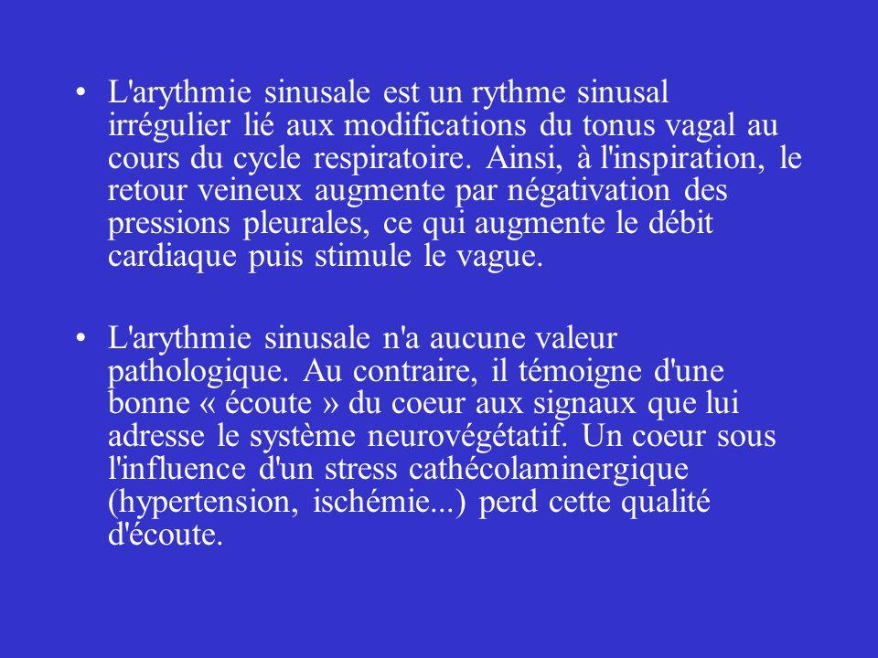 L arythmie sinusale est un rythme sinusal irrégulier lié aux modifications du tonus vagal au cours du cycle respiratoire. Ainsi, à l inspiration, le retour veineux augmente par négativation des pressions pleurales, ce qui augmente le débit cardiaque puis stimule le vague.