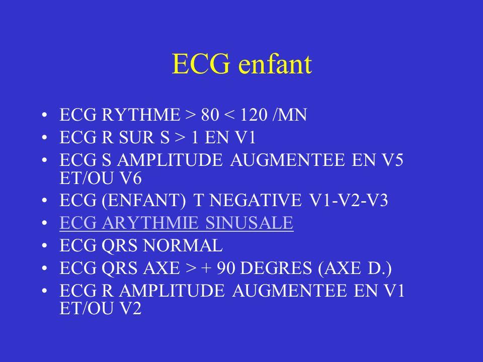 ECG enfant ECG RYTHME > 80 < 120 /MN ECG R SUR S > 1 EN V1