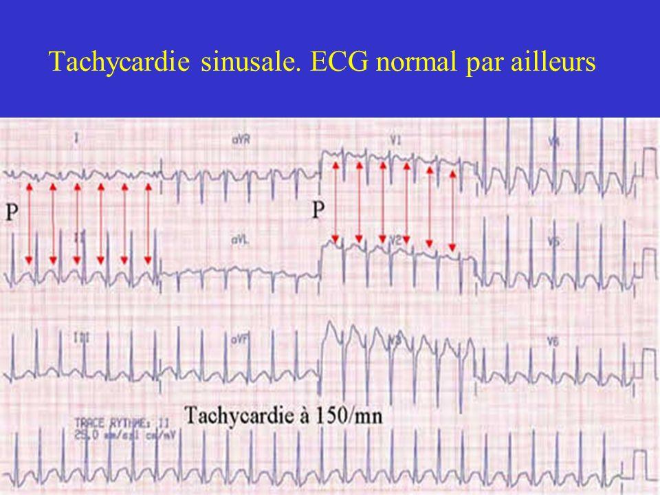 Tachycardie sinusale. ECG normal par ailleurs