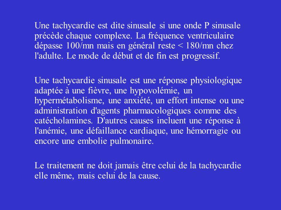 Une tachycardie est dite sinusale si une onde P sinusale précède chaque complexe. La fréquence ventriculaire dépasse 100/mn mais en général reste < 180/mn chez l adulte. Le mode de début et de fin est progressif.