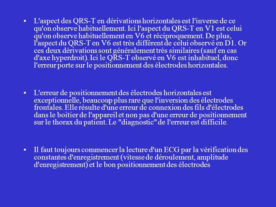 L aspect des QRS-T en dérivations horizontales est l inverse de ce qu on observe habituellement. Ici l aspect du QRS-T en V1 est celui qu on observe habituellement en V6 et réciproquement. De plus, l aspect du QRS-T en V6 est très différent de celui observé en D1. Or ces deux dérivations sont généralement très similaires (sauf en cas d axe hyperdroit). Ici le QRS-T observé en V6 est inhabituel, donc l erreur porte sur le positionnement des électrodes horizontales.