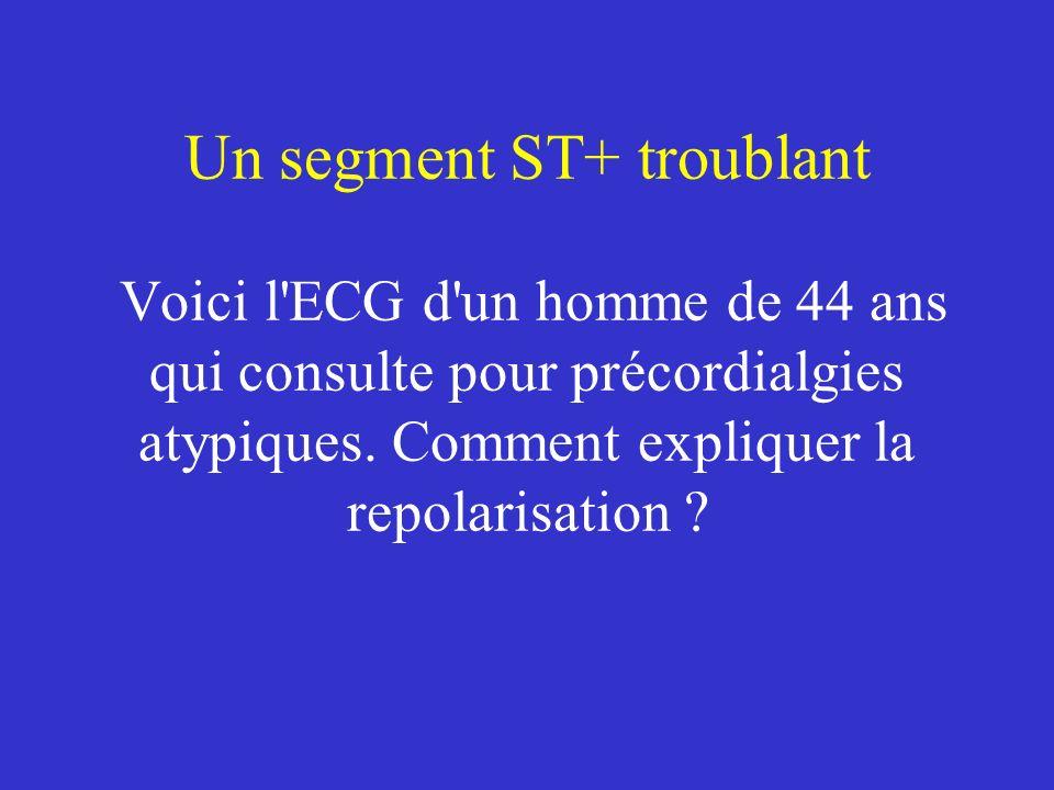 Un segment ST+ troublant Voici l ECG d un homme de 44 ans qui consulte pour précordialgies atypiques.