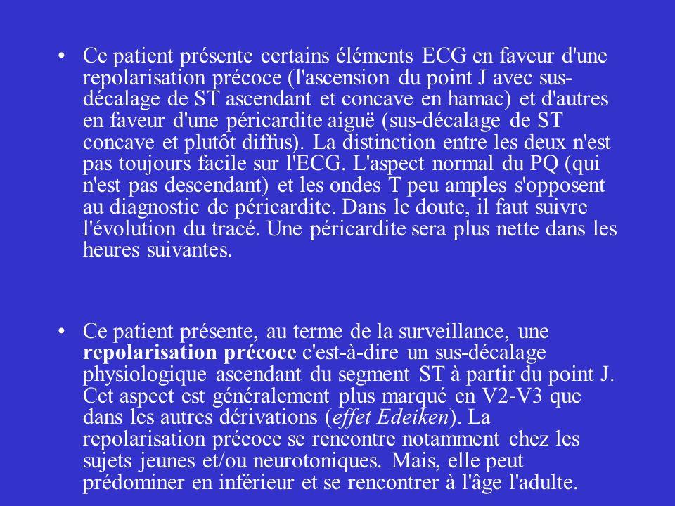 Ce patient présente certains éléments ECG en faveur d une repolarisation précoce (l ascension du point J avec sus-décalage de ST ascendant et concave en hamac) et d autres en faveur d une péricardite aiguë (sus-décalage de ST concave et plutôt diffus). La distinction entre les deux n est pas toujours facile sur l ECG. L aspect normal du PQ (qui n est pas descendant) et les ondes T peu amples s opposent au diagnostic de péricardite. Dans le doute, il faut suivre l évolution du tracé. Une péricardite sera plus nette dans les heures suivantes.