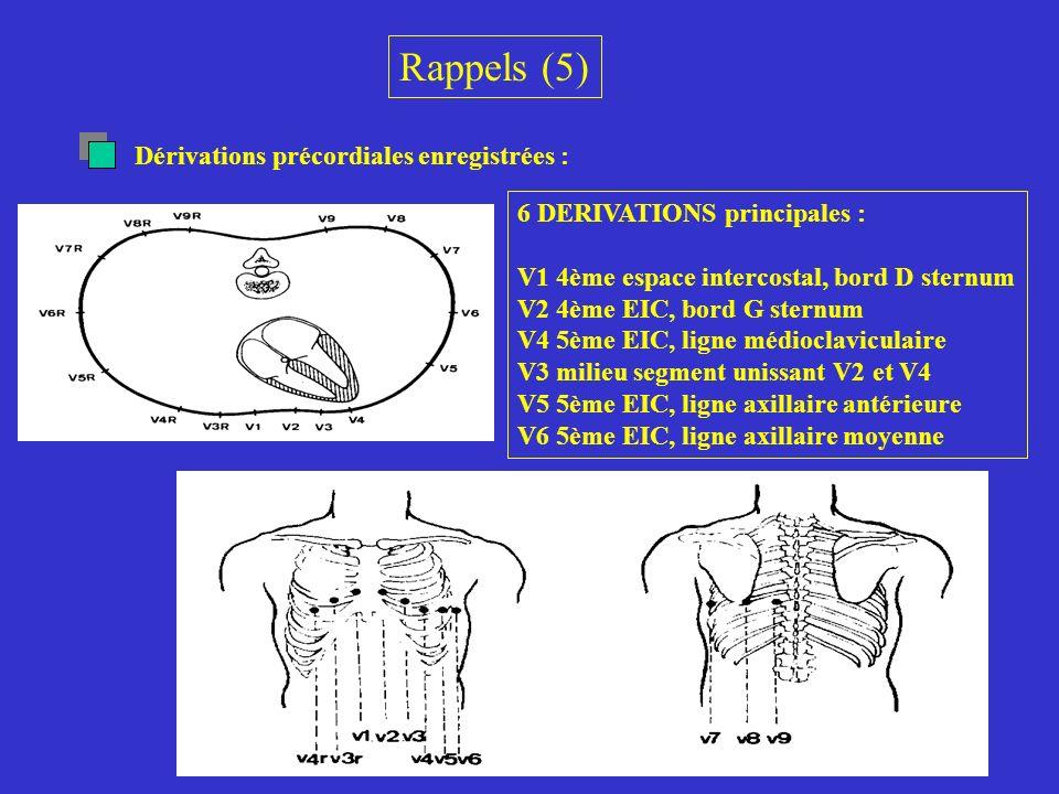 Rappels (5) Dérivations précordiales enregistrées :