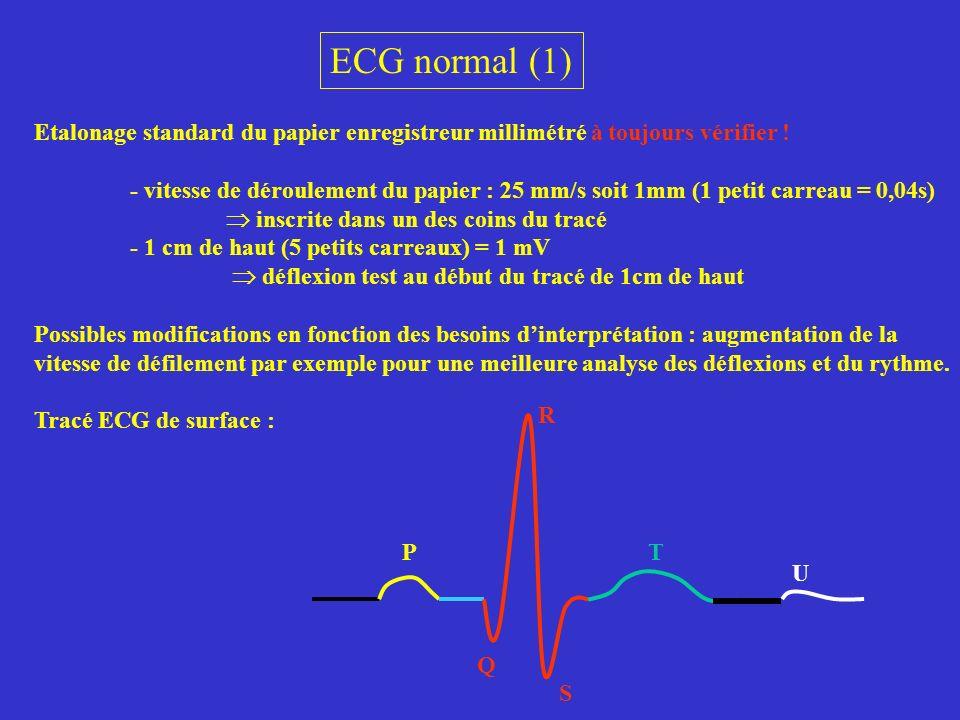 ECG normal (1) Etalonage standard du papier enregistreur millimétré à toujours vérifier !