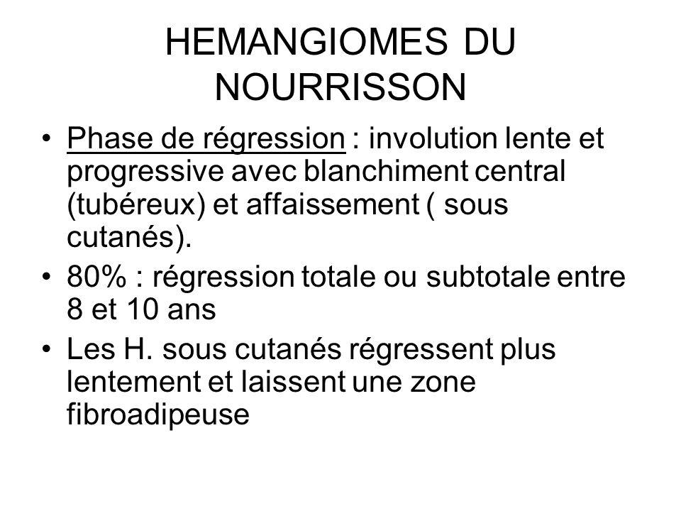 HEMANGIOMES DU NOURRISSON