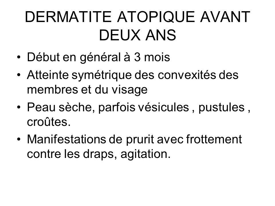 DERMATITE ATOPIQUE AVANT DEUX ANS