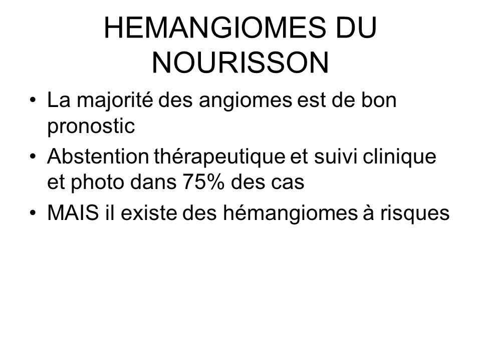 HEMANGIOMES DU NOURISSON