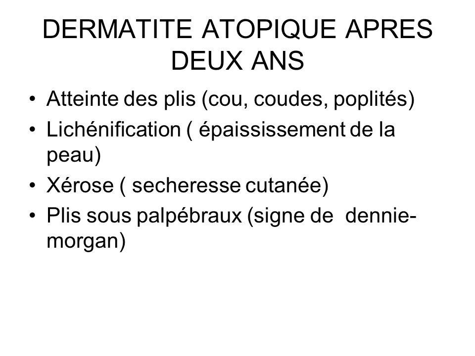 DERMATITE ATOPIQUE APRES DEUX ANS