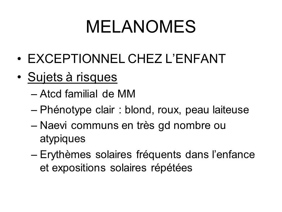 MELANOMES EXCEPTIONNEL CHEZ L'ENFANT Sujets à risques