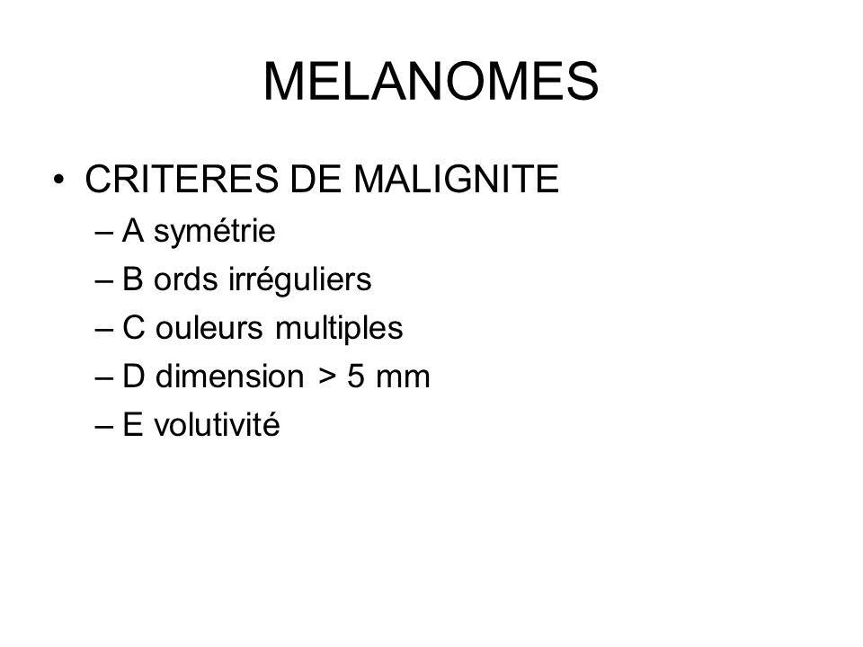 MELANOMES CRITERES DE MALIGNITE A symétrie B ords irréguliers