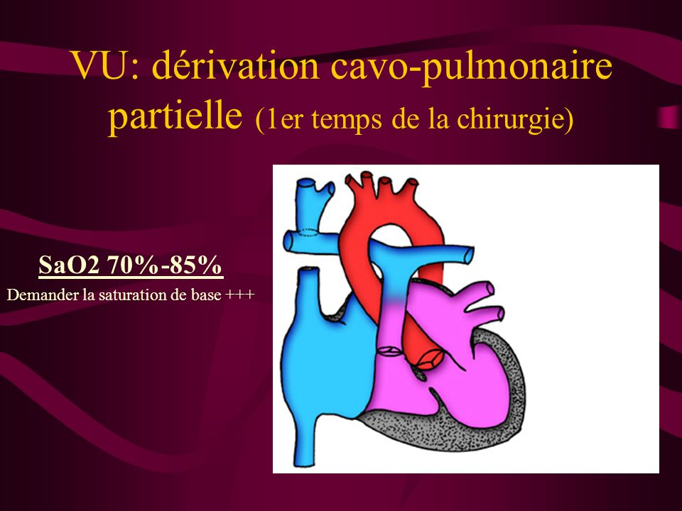 VU: dérivation cavo-pulmonaire partielle (1er temps de la chirurgie)