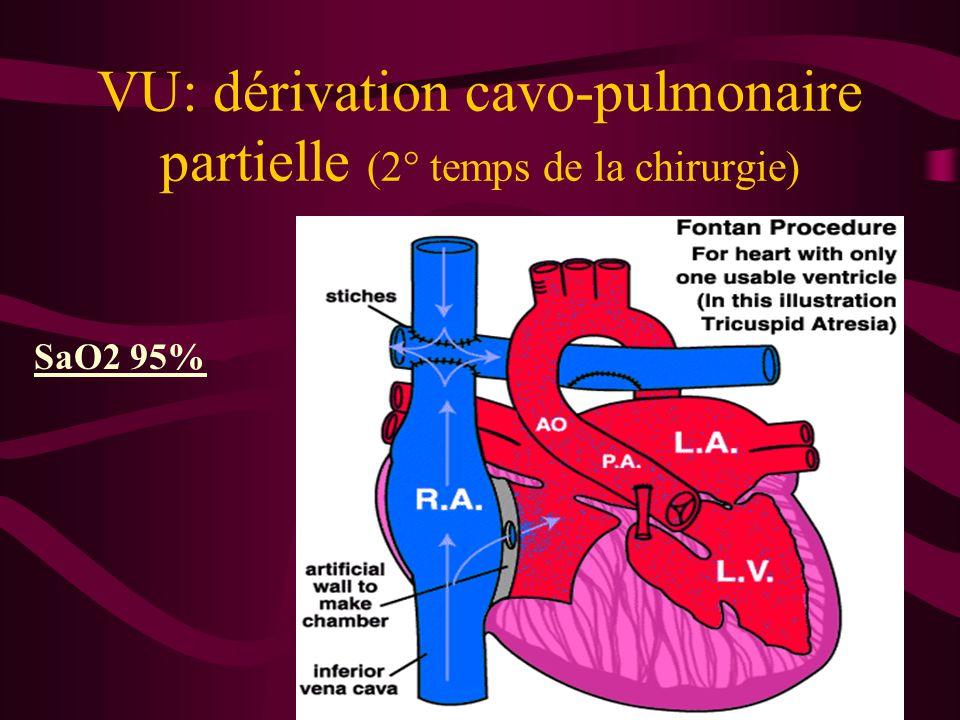VU: dérivation cavo-pulmonaire partielle (2° temps de la chirurgie)