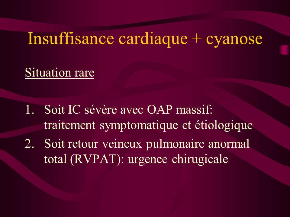 Insuffisance cardiaque + cyanose