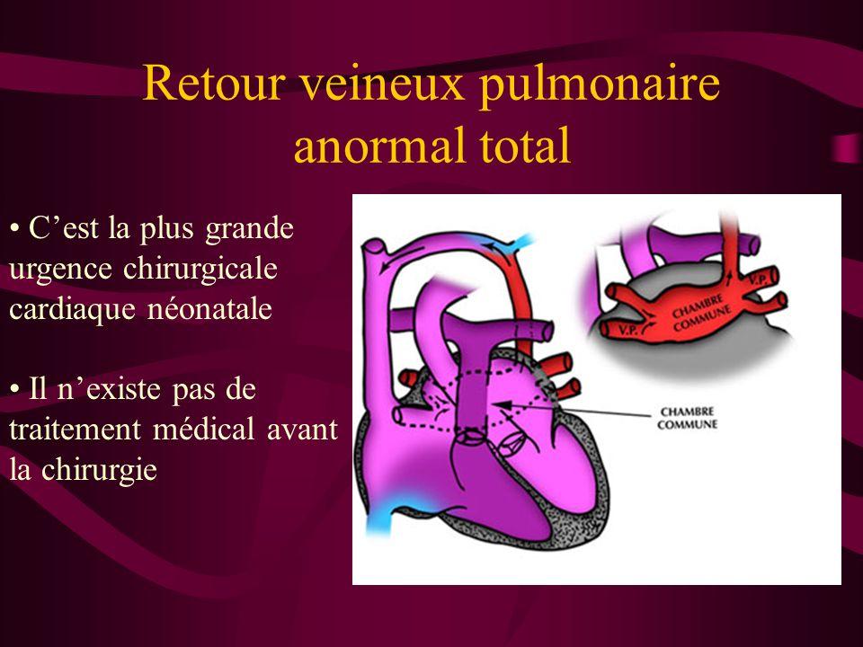 Retour veineux pulmonaire anormal total