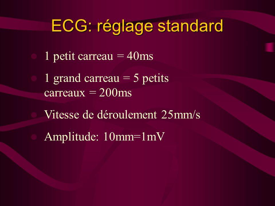 ECG: réglage standard 1 petit carreau = 40ms