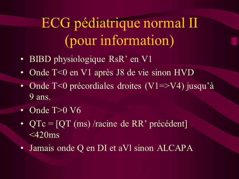 ECG pédiatrique normal II (pour information)