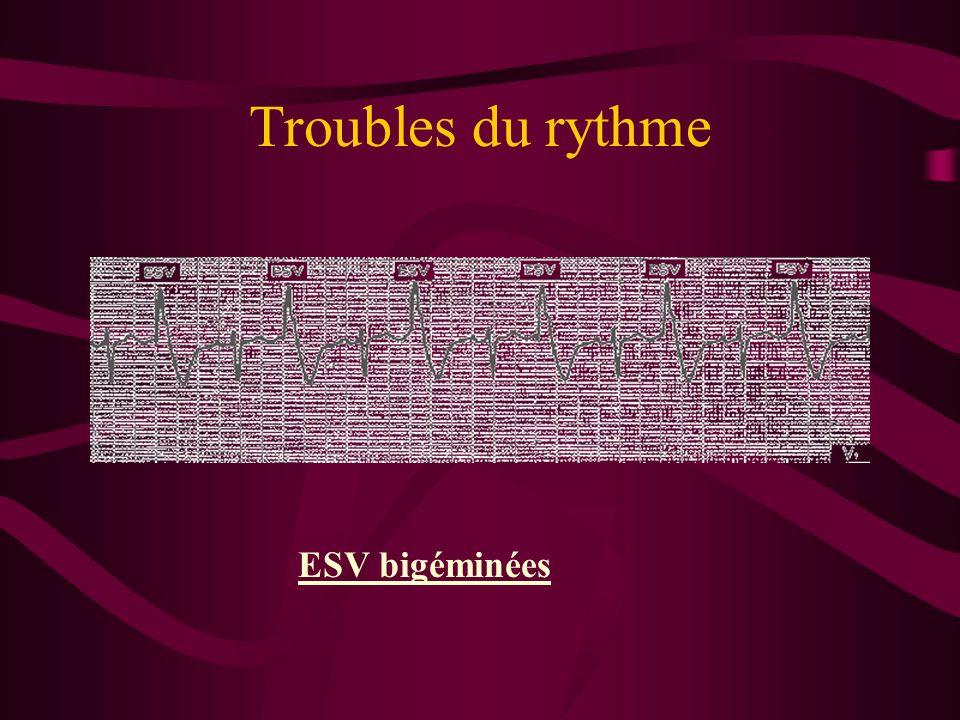 Troubles du rythme ESV bigéminées