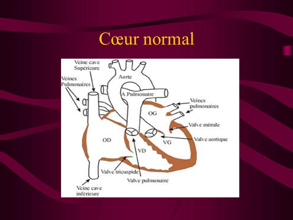 Cœur normal