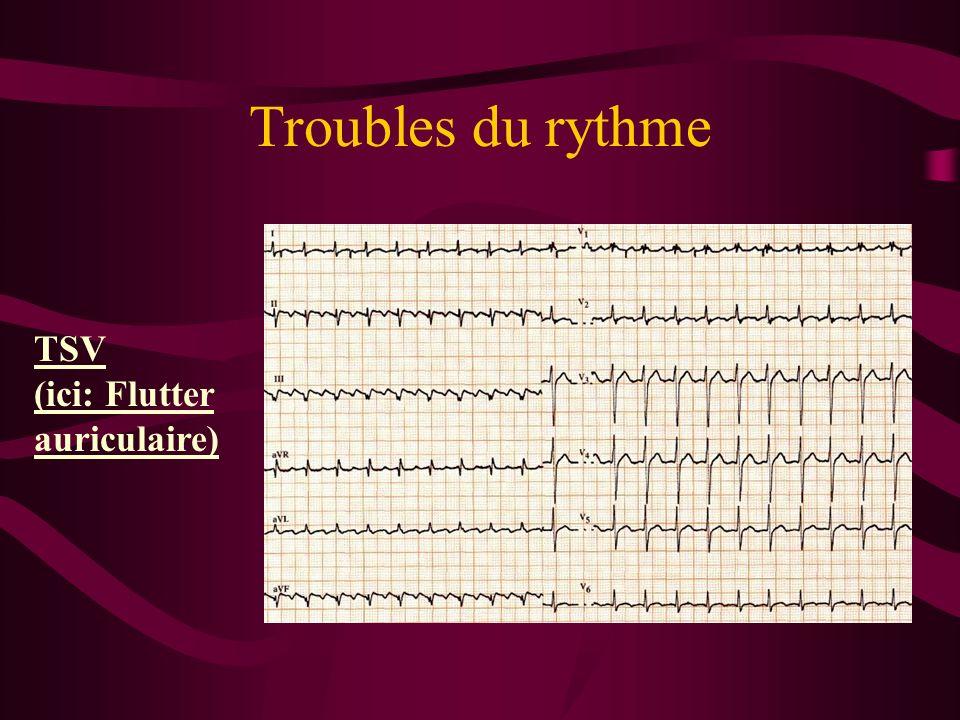 Troubles du rythme TSV (ici: Flutter auriculaire)