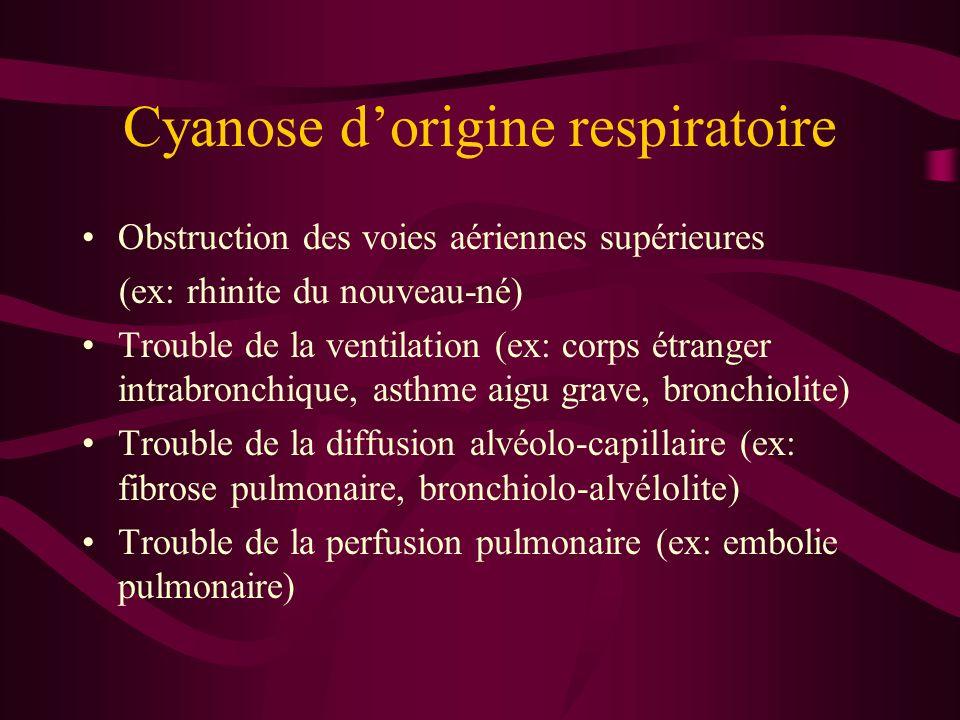 Cyanose d'origine respiratoire