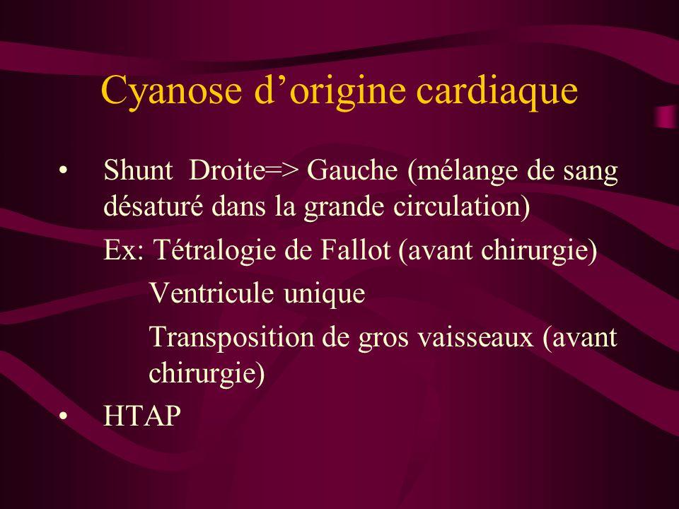 Cyanose d'origine cardiaque