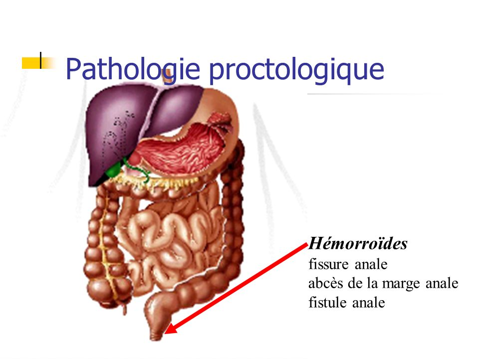 Pathologie proctologique