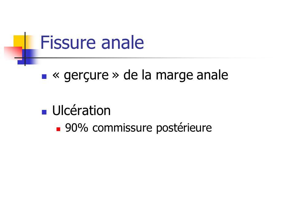 Fissure anale « gerçure » de la marge anale Ulcération