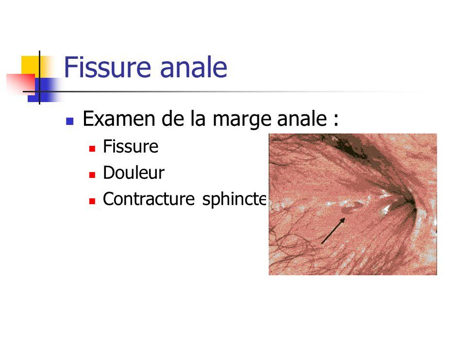 Fissure anale Examen de la marge anale : Fissure Douleur