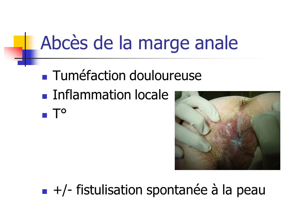 Abcès de la marge anale Tuméfaction douloureuse Inflammation locale T°