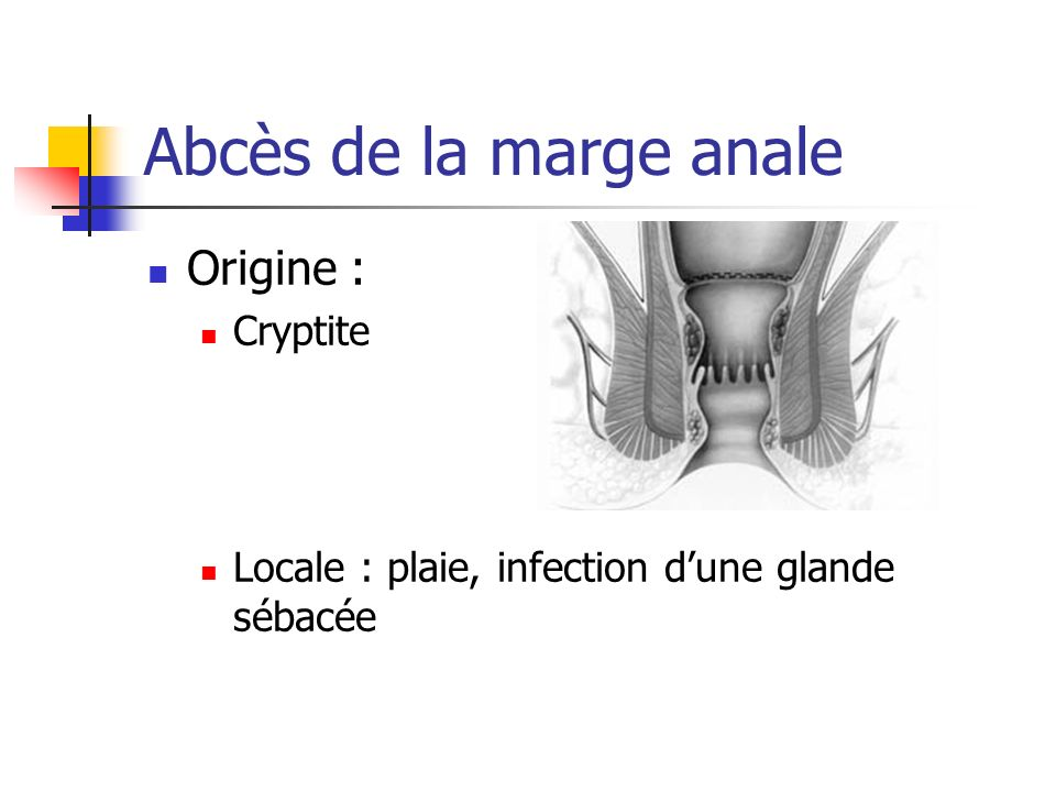 Abcès de la marge anale Origine : Cryptite