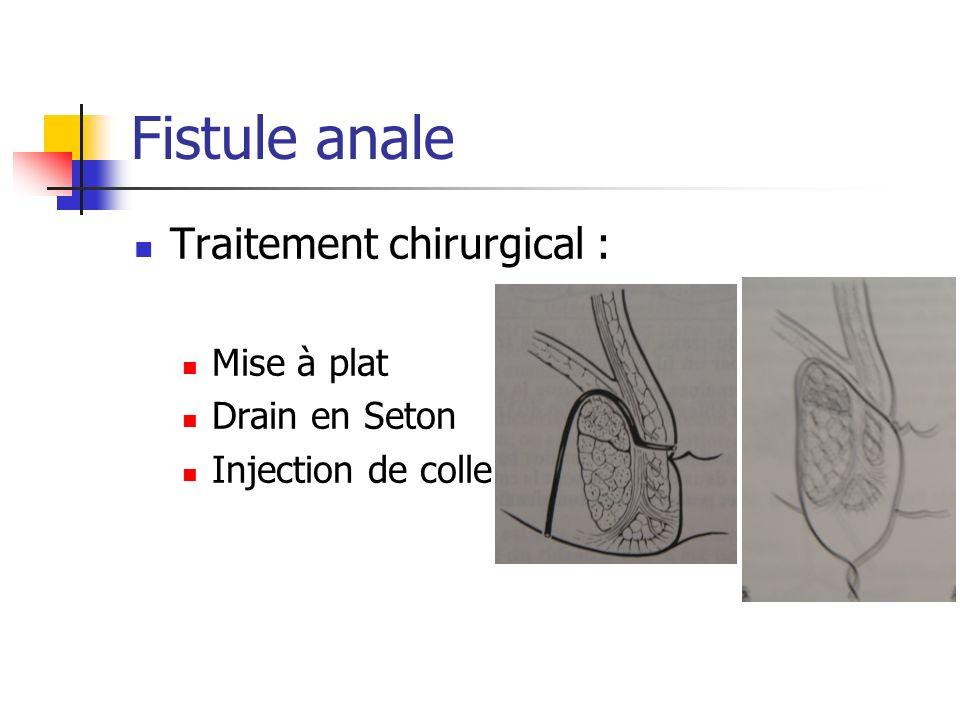 Fistule anale Traitement chirurgical : Mise à plat Drain en Seton