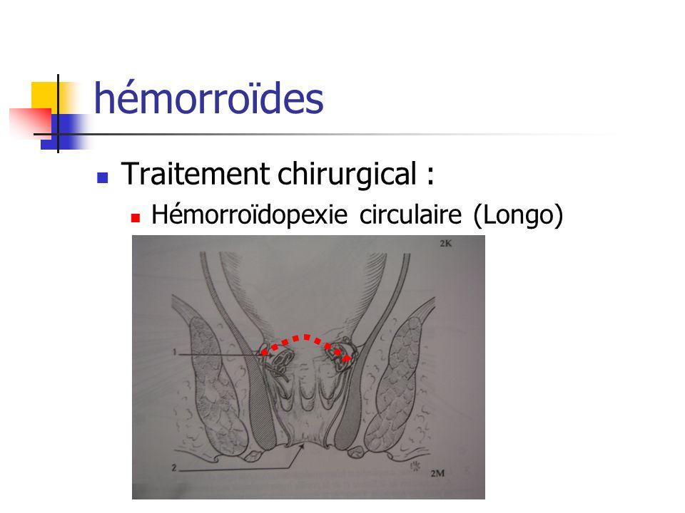 hémorroïdes Traitement chirurgical :