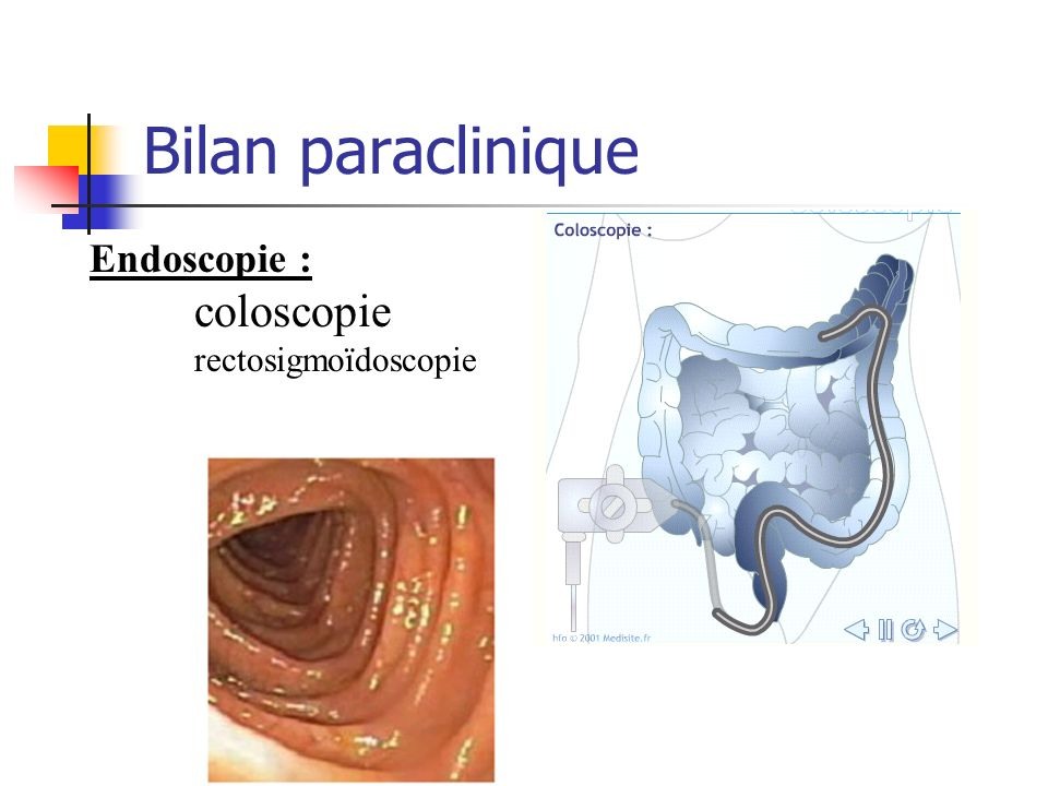Bilan paraclinique Endoscopie : coloscopie rectosigmoïdoscopie