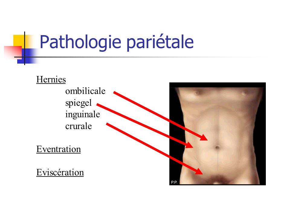 Pathologie pariétale Hernies ombilicale spiegel inguinale crurale