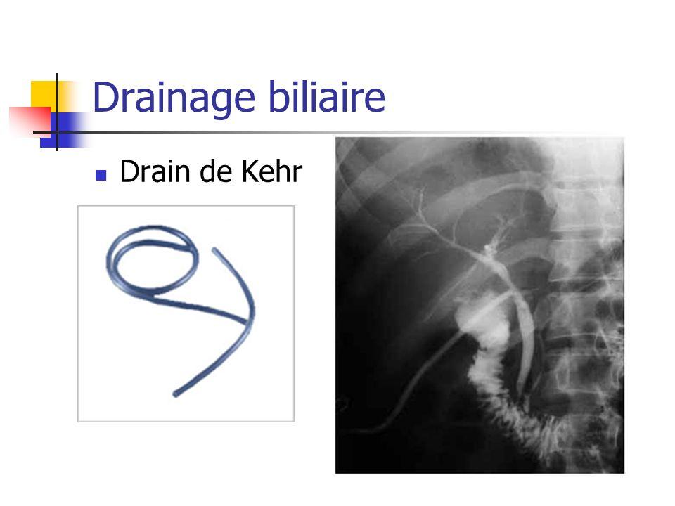 Drainage biliaire Drain de Kehr