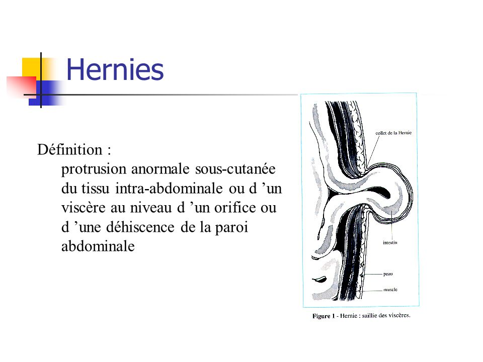 Hernies Définition :