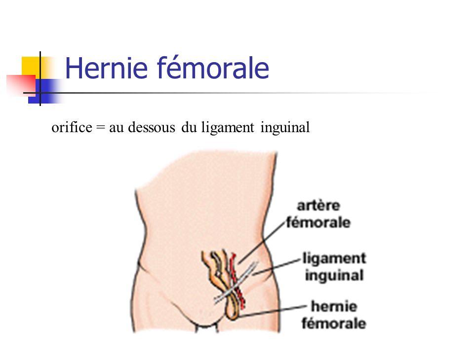 Hernie fémorale orifice = au dessous du ligament inguinal